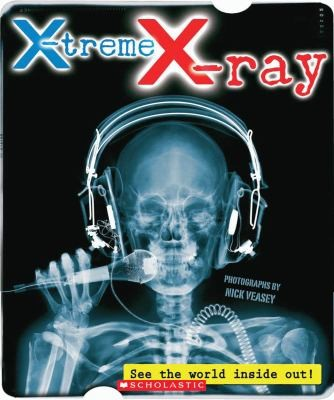 X-treme X-ray: See the World Inside Out!